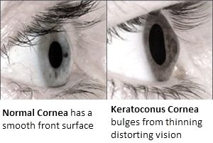 Keratoconus Picture